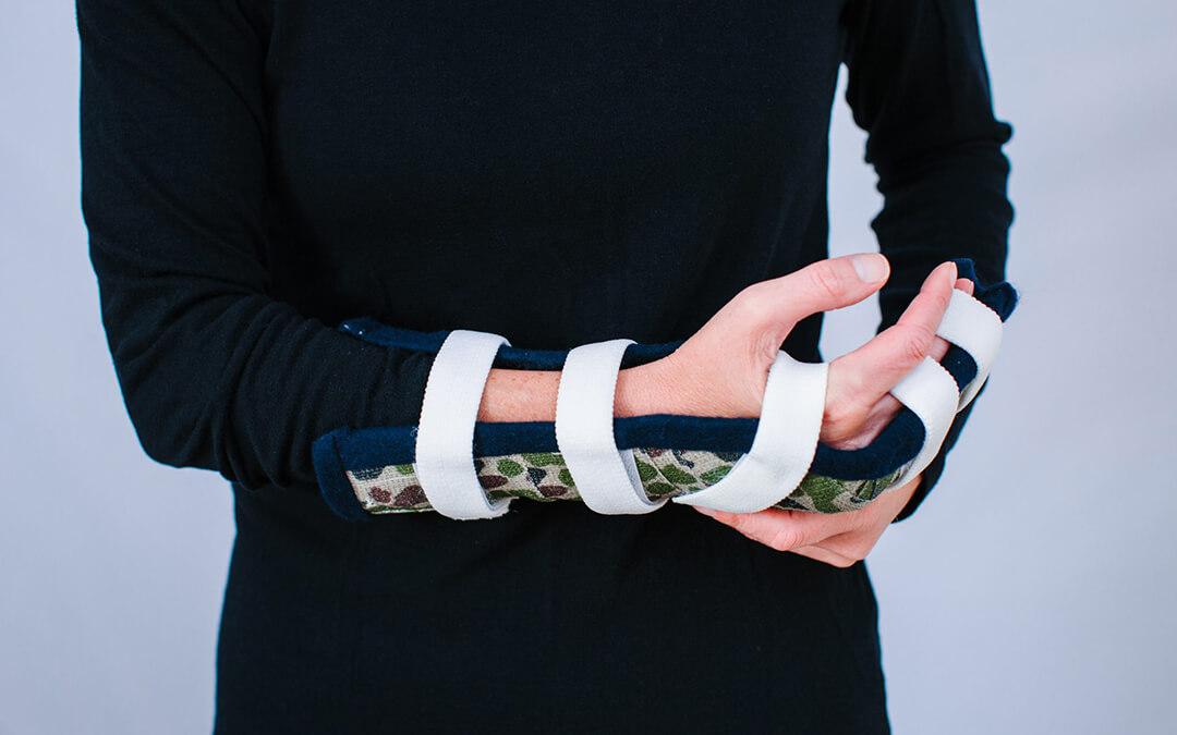 7 Proven Tips for Traveling with an Arm Cast