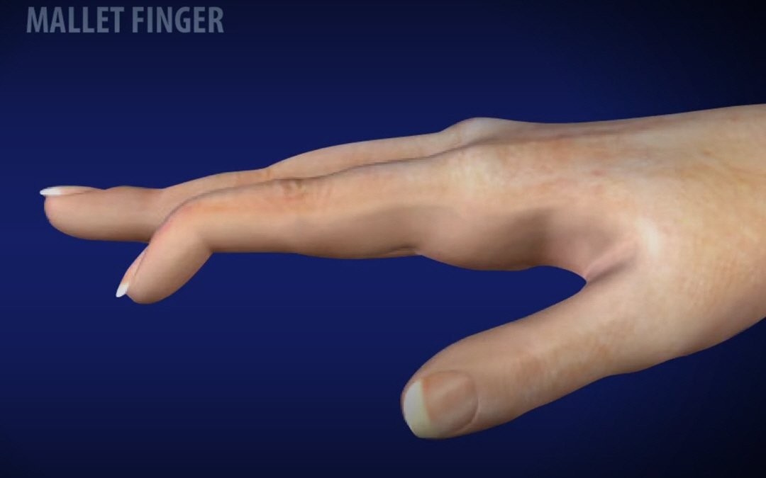 What Is A Mallet Finger?