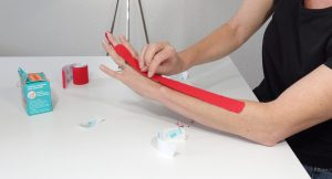 Kinesiotape can be applied over the back of the hand to help trigger finger.